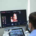 3D and 4D ultrasound